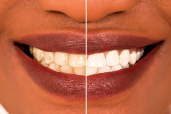 teeth-whitening-kits_4585777_edited